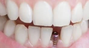 Impianti dentali: tutto quello che c'è da sapere.