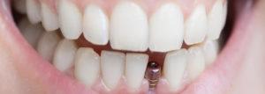 impianti_dentali_si_fratturano-845x300